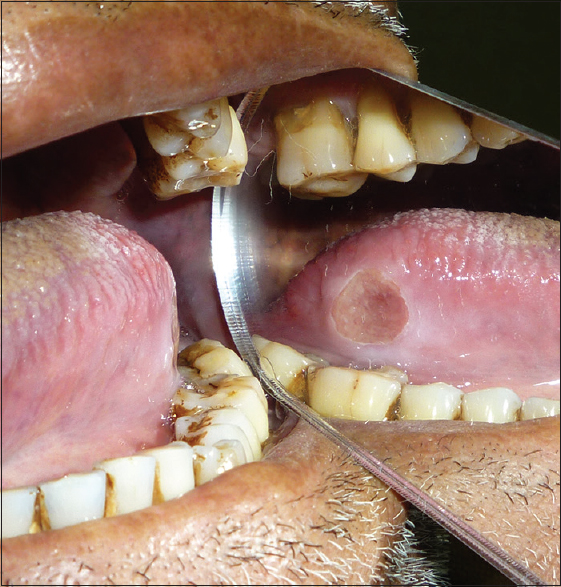 Figure 3: Traumatic ulcer on lateral border of tongue