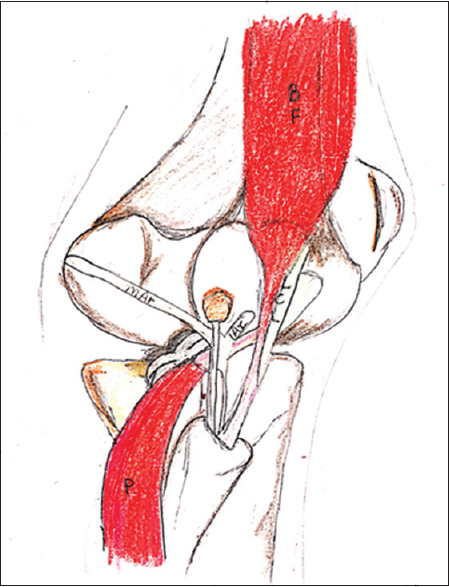 "Figure 2: Another view of the structures in the posterolateral corner of the knee joint, illustrating biceps femoris (BF), in addition to the structures shown in Figure 1. (Adapted from ""unraveling the posterolateral corner of the knee"" by Humberto G Roses)"