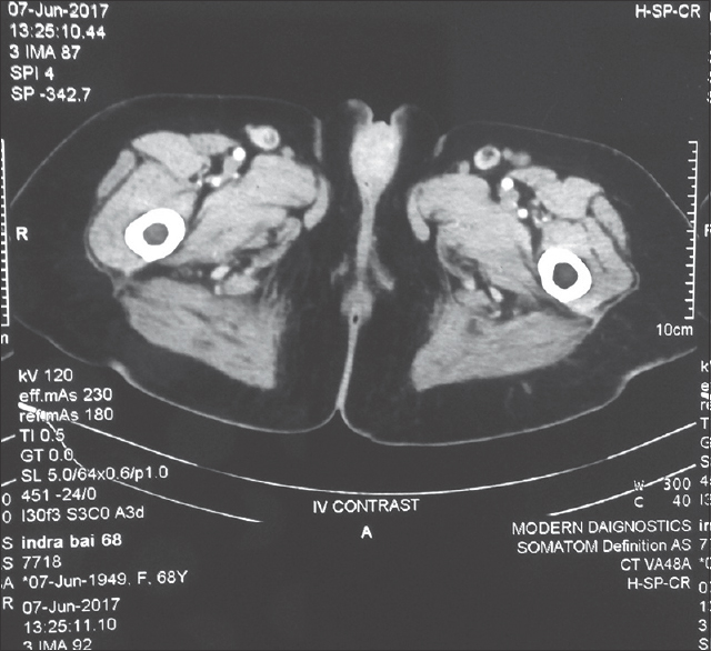 Figure 2: CT scan showing clitoral SOL