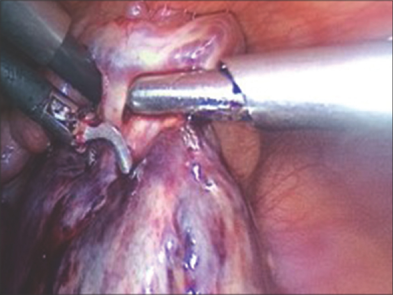Figure 2: Intraoperative photograph showing gangrenous left ovary