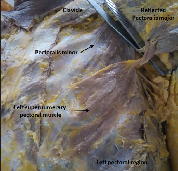 Figure 1: The left supernumerary pectoral muscle