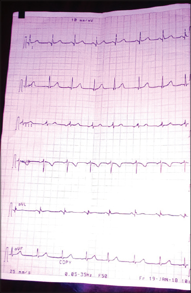 Figure 4: Electrocardiogram showing deep Q-waves in the limb leads
