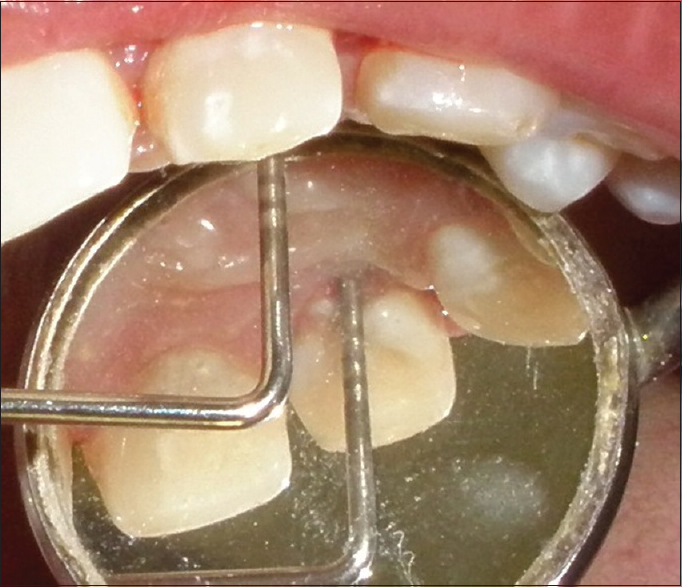 Figure 1: Periodontal pocket measuring 10 mm using UNC-15 probe