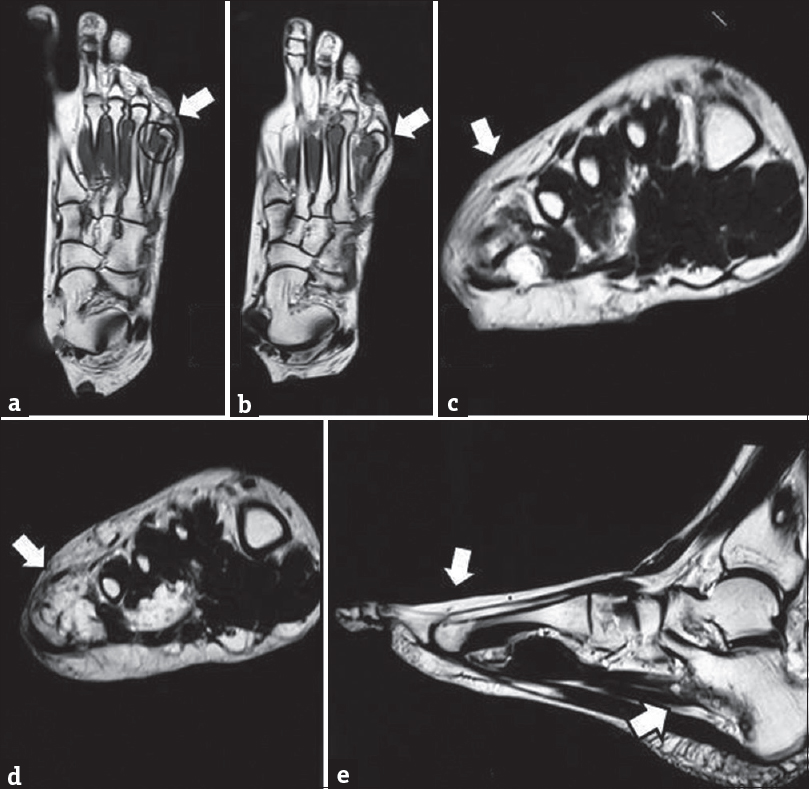 Figure 2: (a) Preoperative magnetic resonance imaging of the foot (coronal view) showing the tumor (arrow mark); (b) preoperative magnetic resonance imaging of the foot (coronal view) showing the tumor (arrow mark); (c) preoperative magnetic resonance imaging of the foot (axial view) showing the tumor (arrow mark); (d) preoperative magnetic resonance imaging of the foot (axial view) showing the tumor (arrow mark); (e) preoperative magnetic resonance imaging of the foot (sagittal view) showing the tumor at various places (arrow mark)