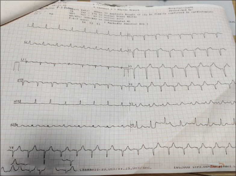 Figure 4: Electrocardiogram: Case 4 at presentation